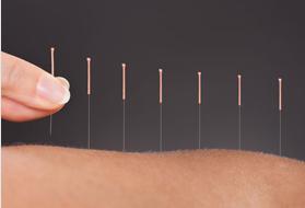 IMS (Intramuscular Stimulation)